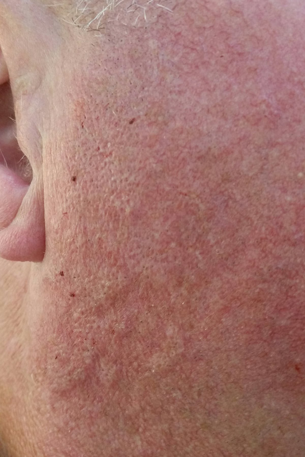 VeinGogh Facial Veins Removal after photo
