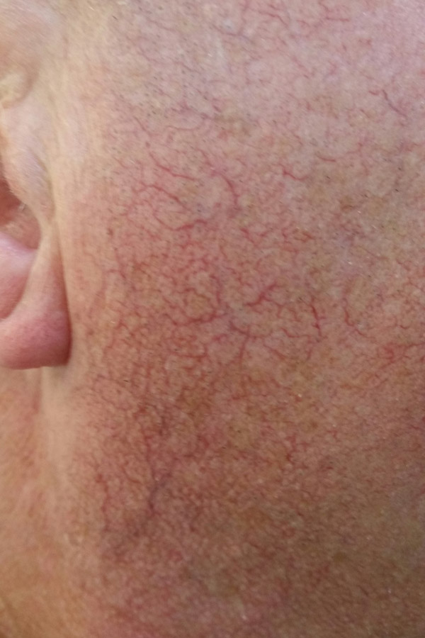 VeinGogh Facial Veins Removal before photo
