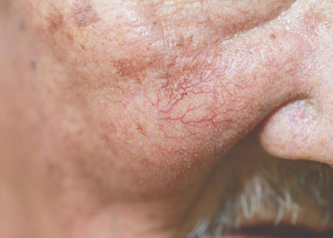 Fine Facial Veins treatment in Auckland