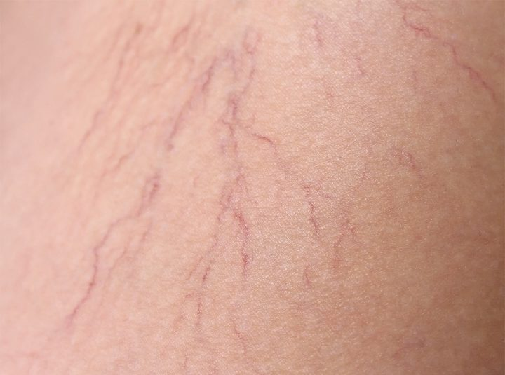 Fine Spider Veins treatment in Auckland