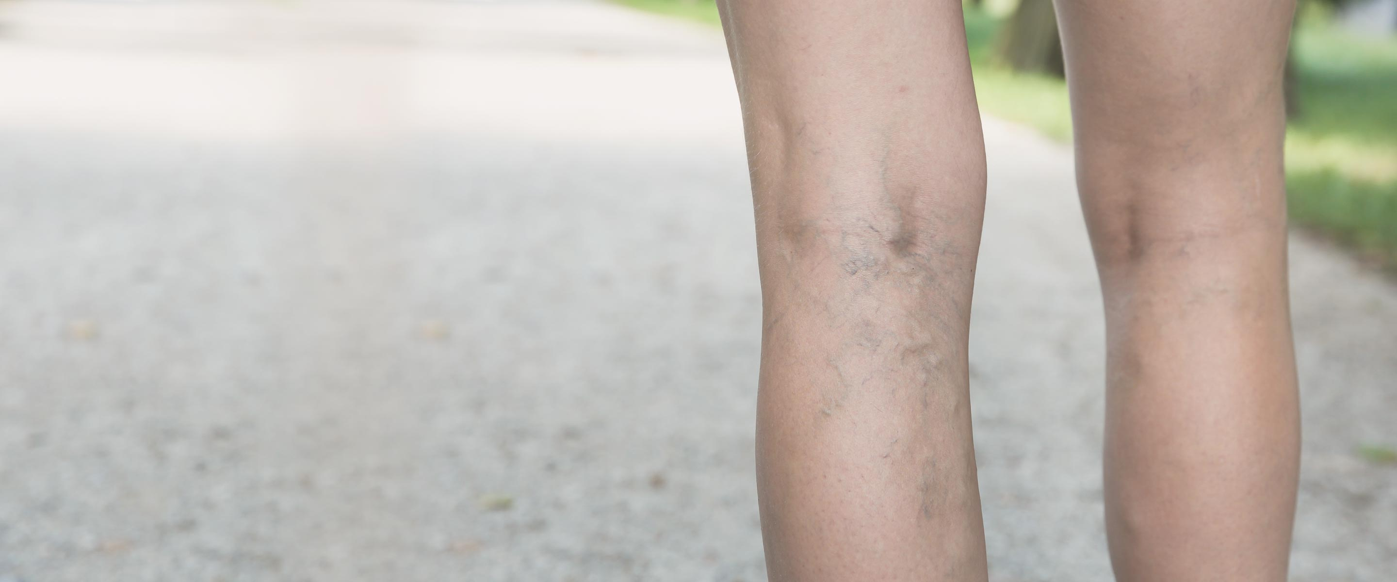 Which Varicose Vein Treatment is Best?